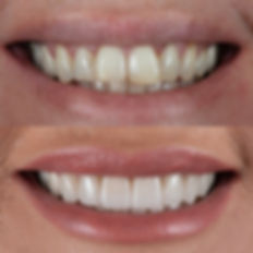 Dental Veneers Hampton Dental Centre