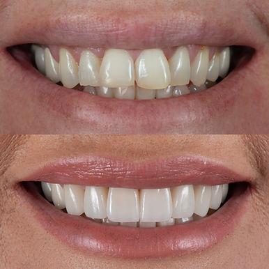 Dental Veneers Hampton Dental Centre