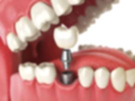 dental implants Hampton Dental Centre