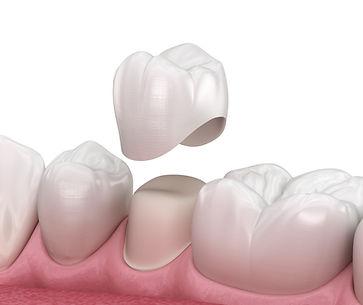 Dental Crown Hampton Dental Centre