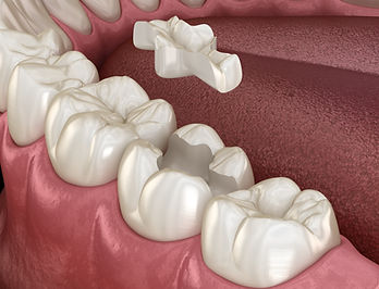 Inlays and Onlays Hampton Dental Centre