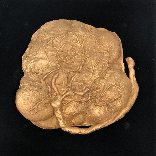 Placenta Cast