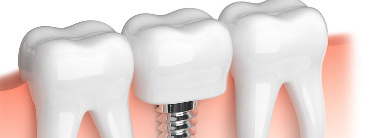 dental_implants_header_edited.jpg