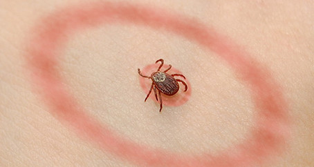 How Vitamin IV drips Can Help With Lyme Disease