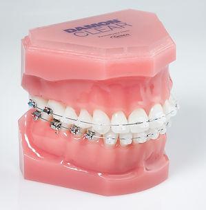 """יישור שיניים בשיטת דימון - דר"""" נועה פישר"""