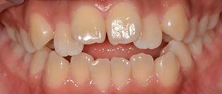 """יישור שיניים לפני- ד""""ר נועה פישר"""