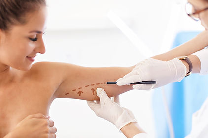a Dr. mark a woman's arm fat area before surgery