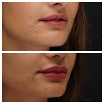 עיבוי שפתיים.jpg