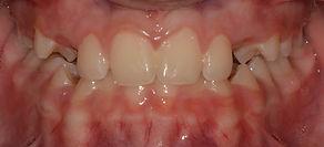 """יישור שיניים לפני ואחרי - ד""""ר נועה פישר"""