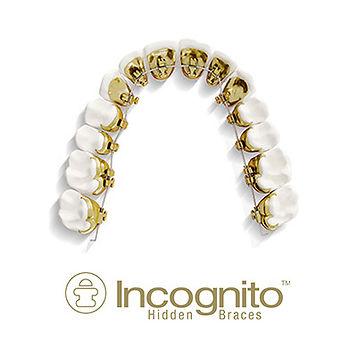 """יישור שיניים אינקוגניטו / גשר פנימי - ד""""ר נועה פישר"""