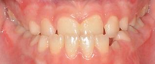 יישור שיניים בילדים - לפני