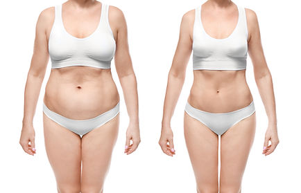 Before and after image of belly distention, after results are much slimmer