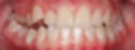 """יישור שיניים לפני - ד""""ר נועה פישר"""