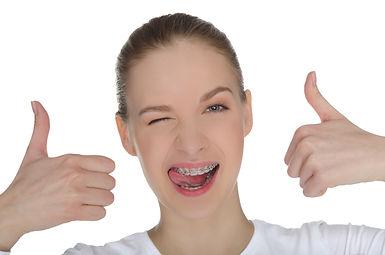 גשר בשיניים - יישור שיניים גומיות