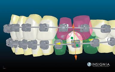 """יישור שיניים אינסיגניה - ד""""ר נועה פישר"""