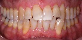 יישור שיניים לפני ואחי