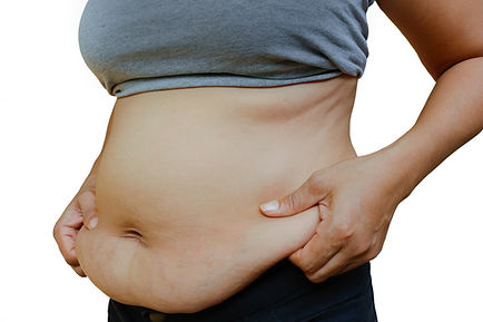 A woman holding her fatty tummy