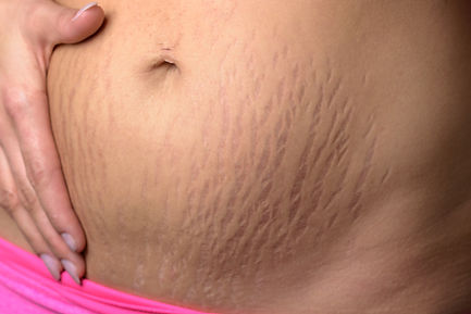 a woman's belly with stretch marks all over