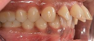 יישור שיניים לפני - אינקוגניטו