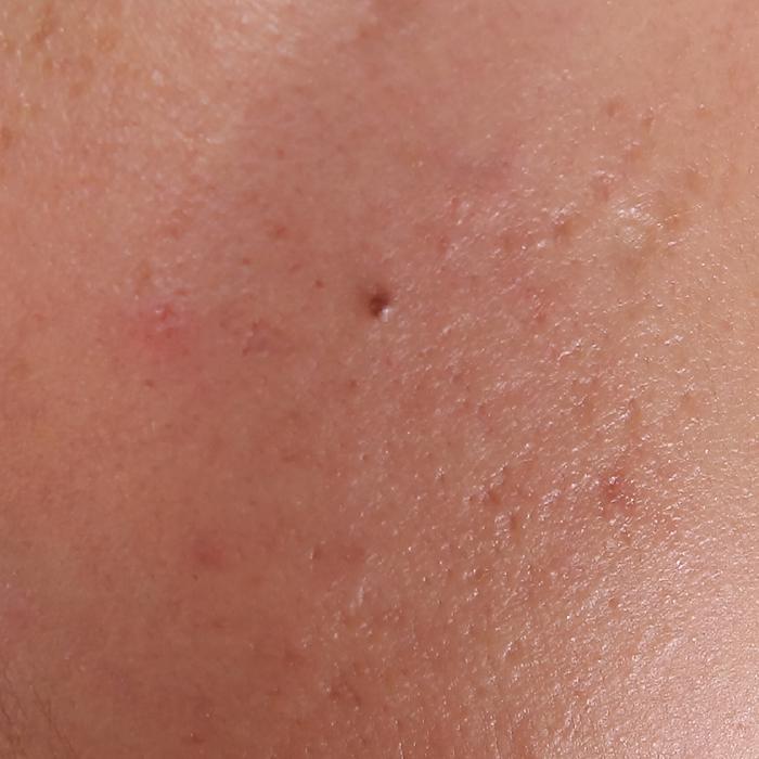 Sensitive Skin | KSFBEAUTY