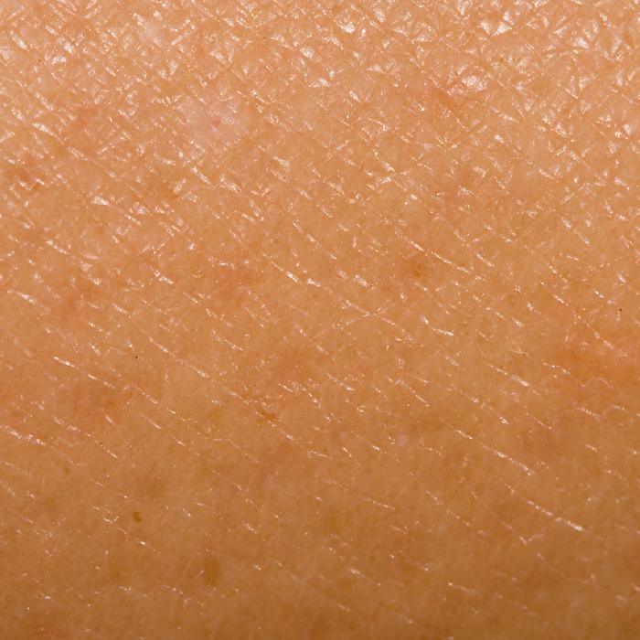 Dry Skin | KSFBEAUTY