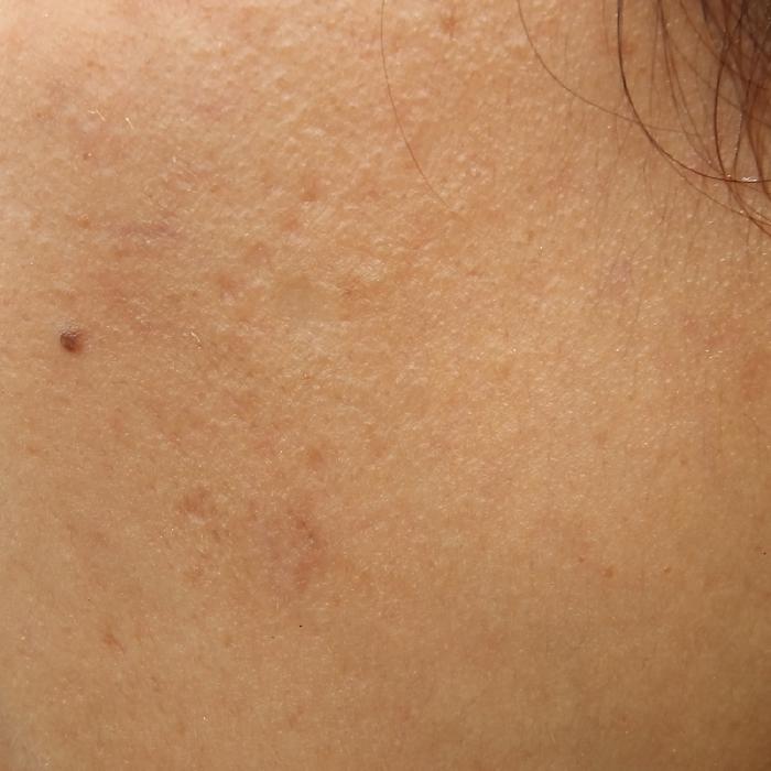Oily Skin | KSFBEAUTY