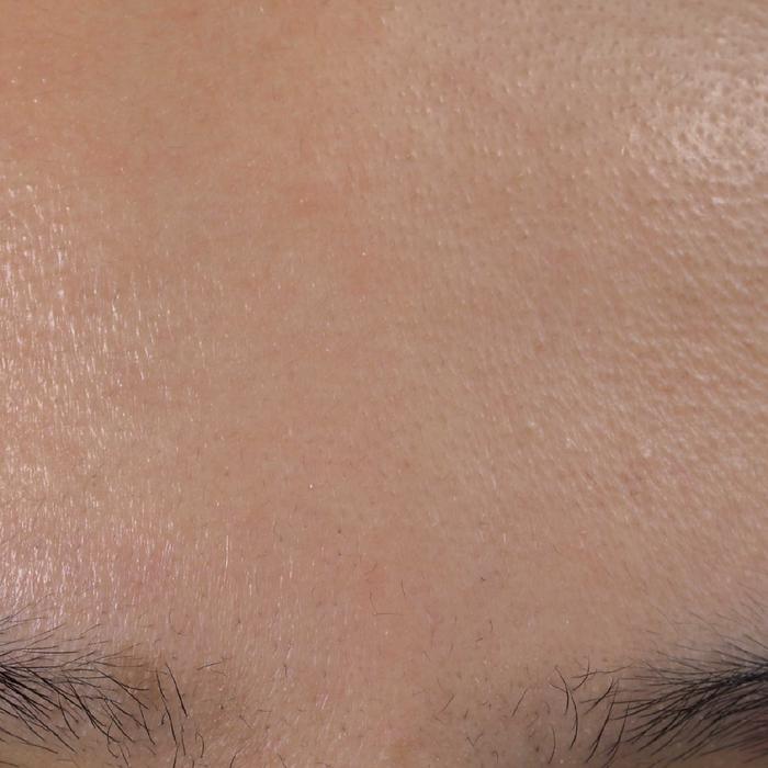 Combination Skin | KSFBEAUTY