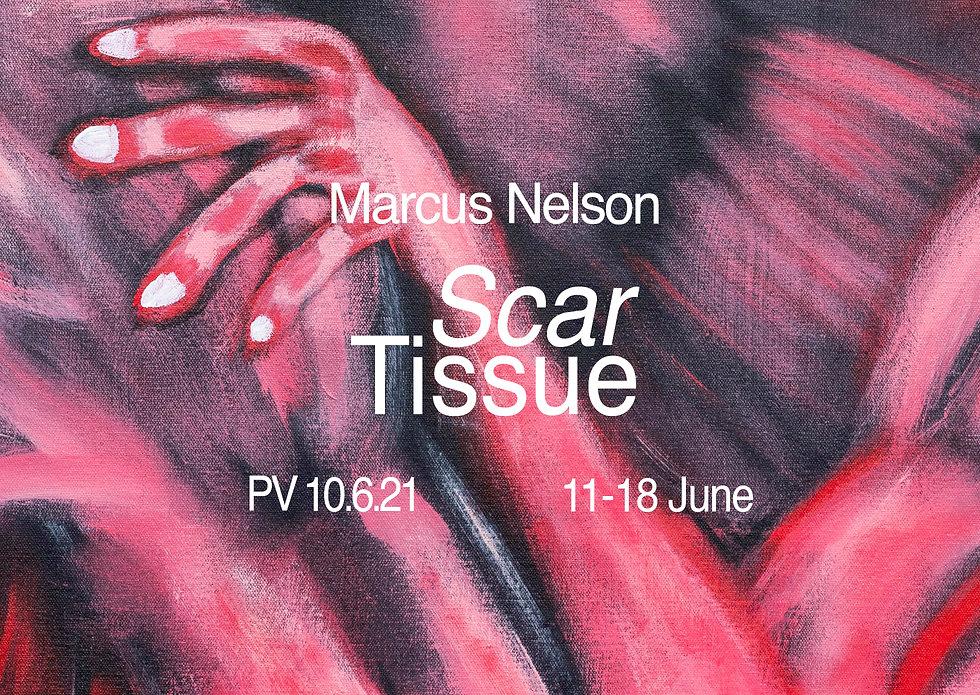 Marcus Nelson Scar Tissue