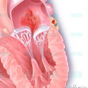 Mitral valve regurgitation