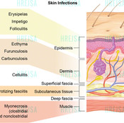 Skin Infections