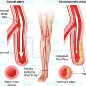 Atherosclerotic artery