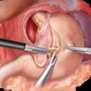 Gastric Hernia