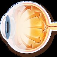 Internal Eye Pressure