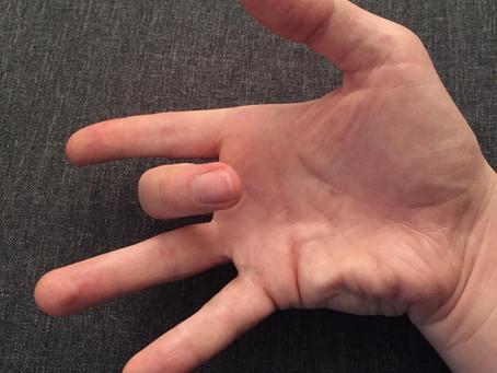 Tetik Parmak (Trigger Finger)