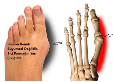 Bunion - Ayakta Kemik Çıkıntısı ve Cerrahi Tedavisi