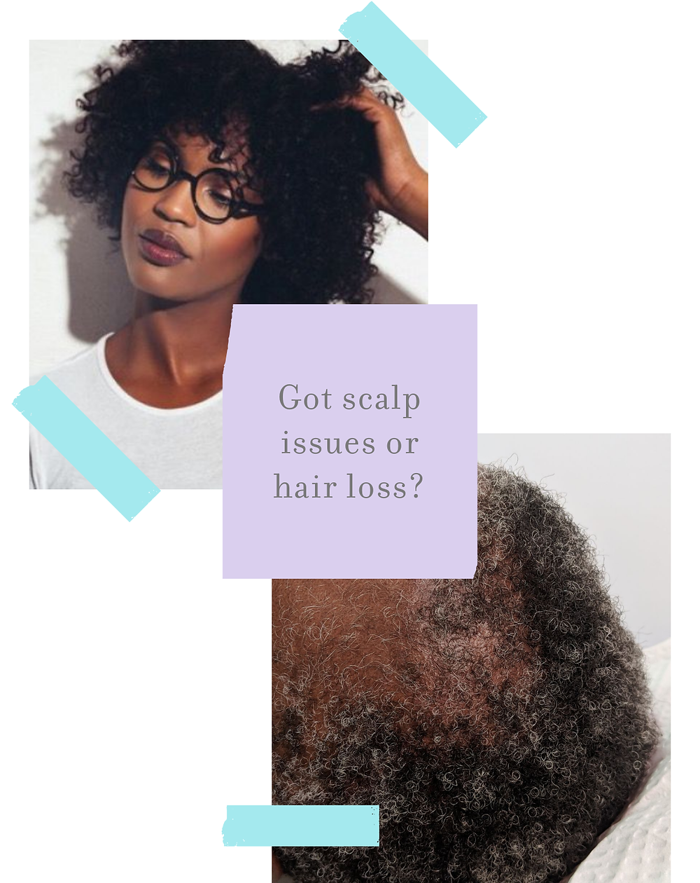 Got Scalp Issues For Hair Loss
