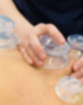 cupping massage.jpg