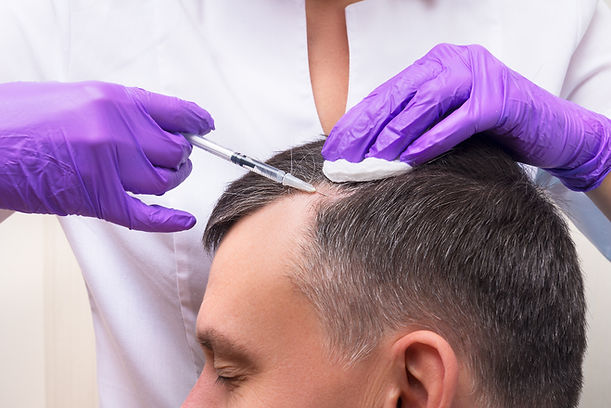 Injection, Treatment for Hair Loss.jpg
