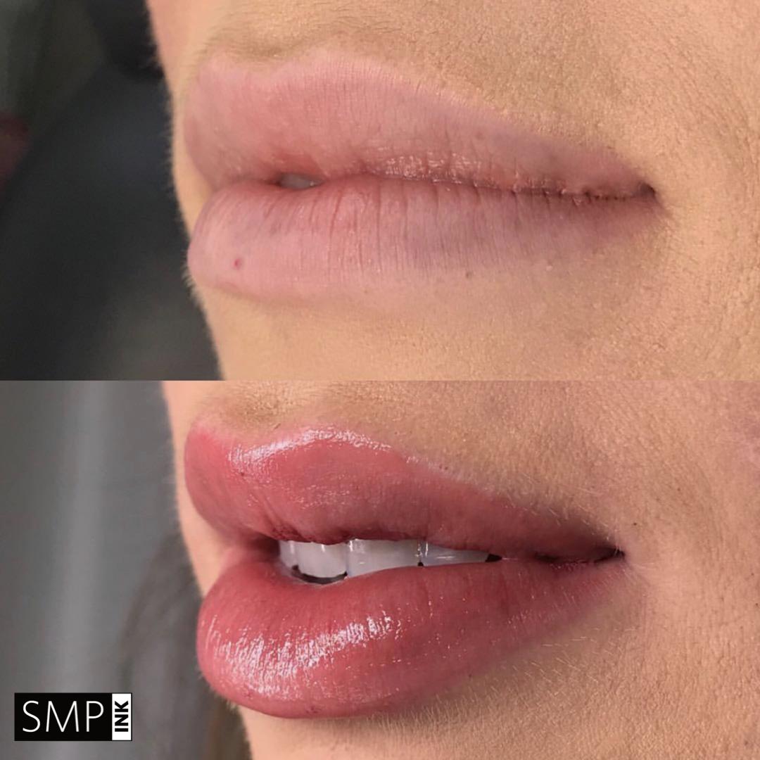 Lip Correction and Full Enhancement