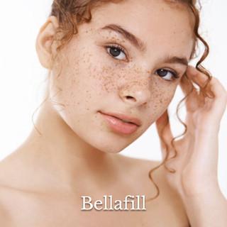 Bellafill® Cosmetic