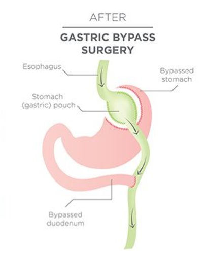 Gastric_Bypass_Surgery_for_web_edited.jp