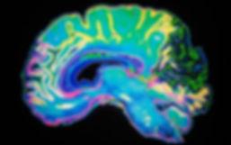 MRI_scan_brain_1827992b.jpg