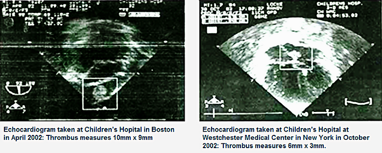 Thrombus Before _ After Echocardiogram_e