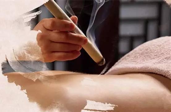 Comment choisir un soin parmi les cinq traitements physiques de la médecine traditionnelle chinoise