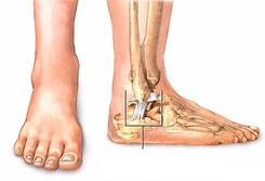 Entorse do tornozelo /Lesão ligamenar do tornozoelo