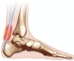 Lesão do tendão de Aquiles