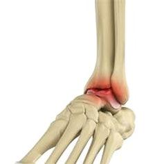 Artrose do Tornozelo