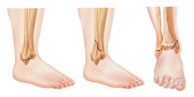 Fratura tornozelo / Fratura maleolo medial e lateral