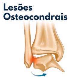 Lesões Osteocondrais do Tálus