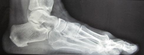 Hallux rigidus radiografia